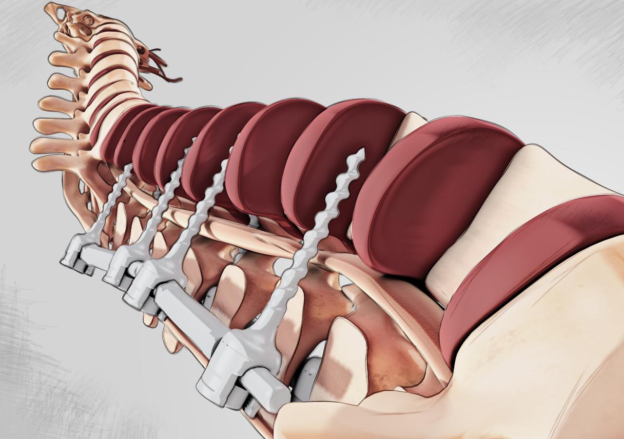 Spinal Fusion Surgery